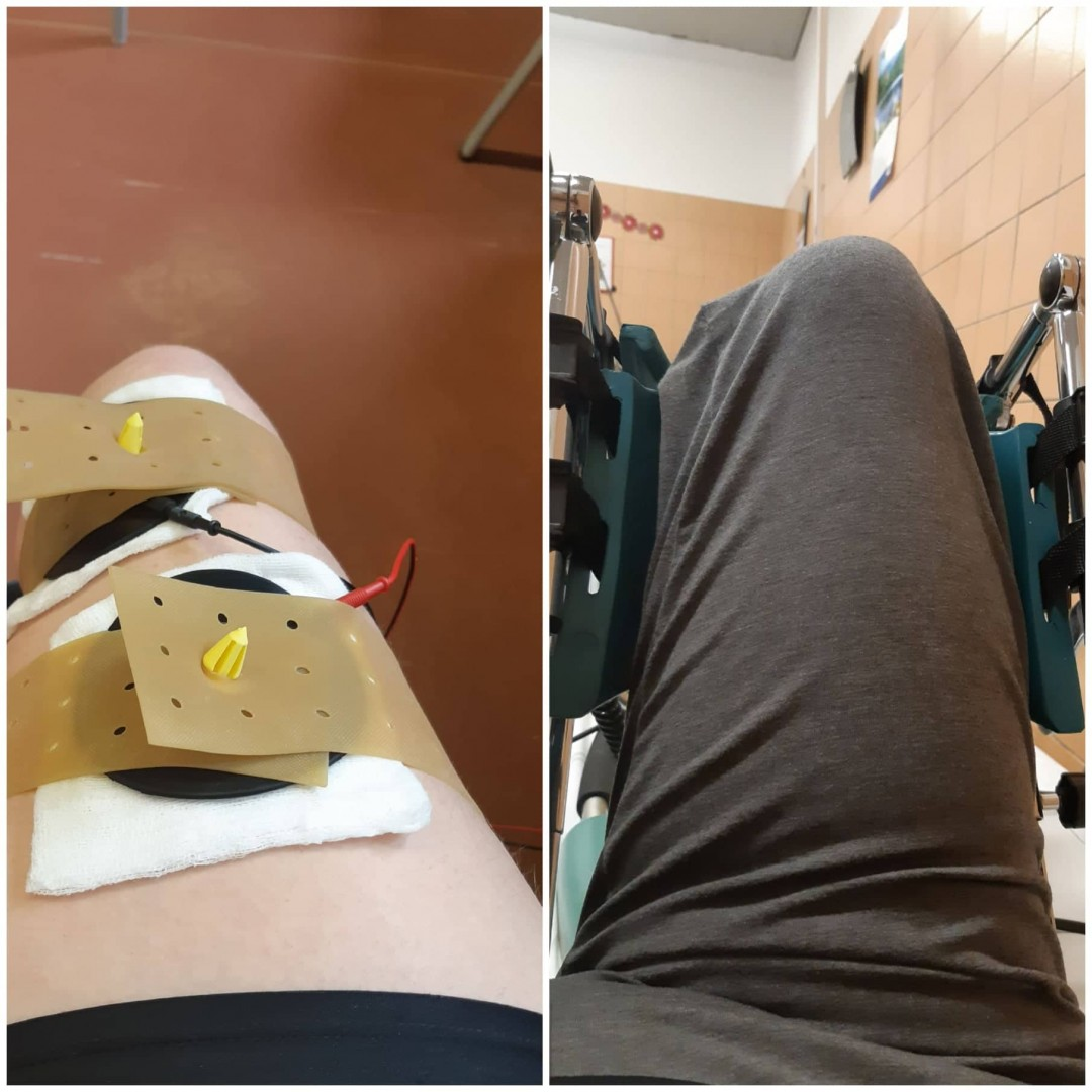 Gyógytorna, rehabilitáció szalagszakadás után - Csak pozitívan!