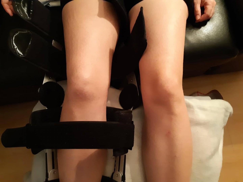 Gyógytorna, rehabilitáció szalagszakadás után